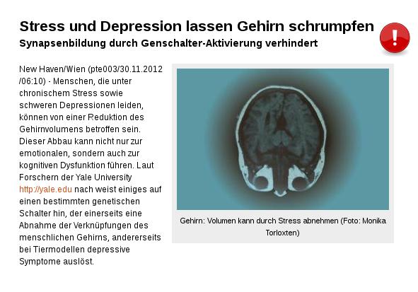 Gehirn: Volumen kann durch Stress abnehmen!